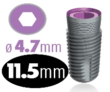 Infinity Internal Hex Implant 4.7mm x 11.5mm