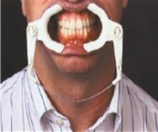 Adjustable cheek Retractors