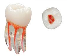 Plastic tooth for endodontic training